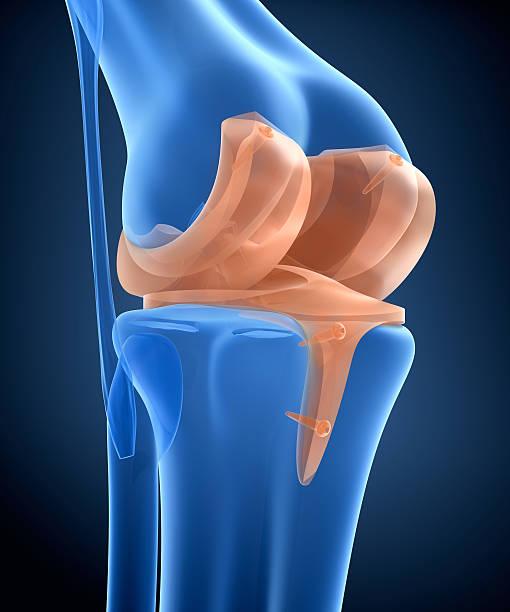 knee and titanium hinge joint. x-ray view.  3d illustration - knäskål bildbanksfoton och bilder