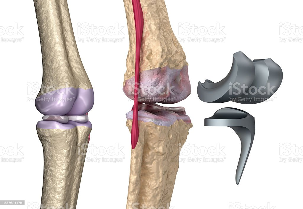 Knee and titanium hinge joint.Isolated on white stock photo