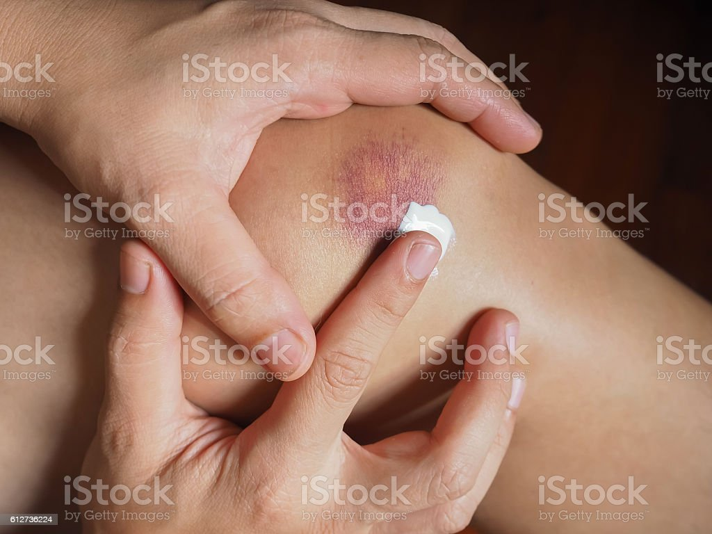 Knee Contusion (Bruised Knee) stock photo