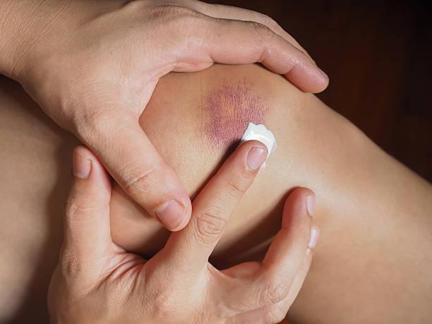 Knee Contusion (Bruised Knee) stock photo