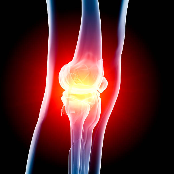 Knee in pain x-ray stock photo