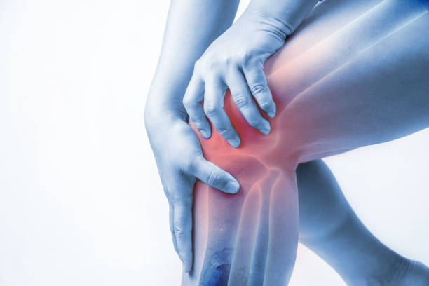 knee injury in humans .knee pain,joint pains people medical, mono tone highlight at knee - pain stock photos and pictures