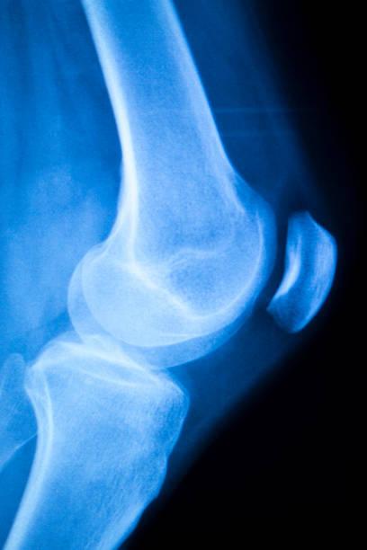 ginocchia; menisco x-ray test scansione - menisco foto e immagini stock