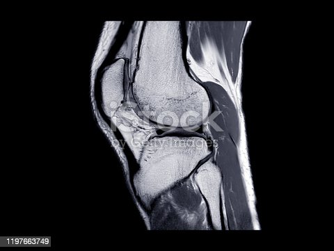 MRI Knee joint or Magnetic resonance imaging  sagittal view for detect tear or sprain of the anterior cruciate  ligament (ACL).