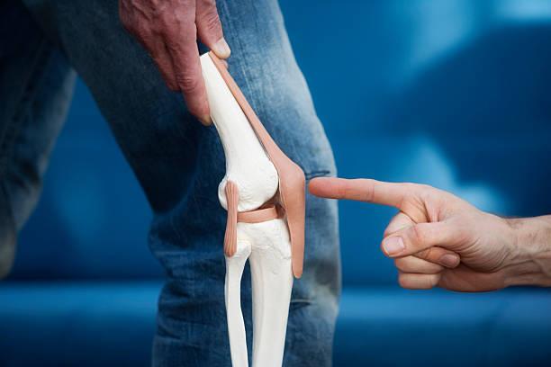 knee joint - knäskål bildbanksfoton och bilder