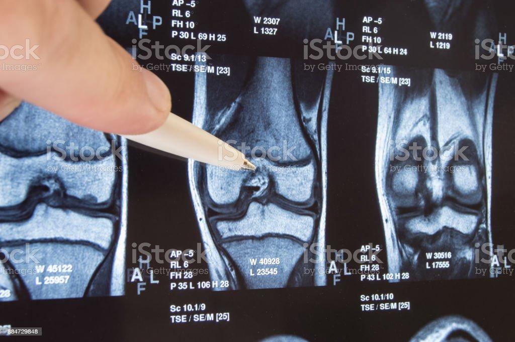 Knie gemeinsamen Röntgen oder MRT. Arzt wies im Bereich des Kniegelenkes, wo Pathologie oder Problem erkannt wird, solche Fraktur, Zerstörung des Gelenkes, Arthrose. Diagnose von Krankheiten, die Knie durch Radiologie – Foto