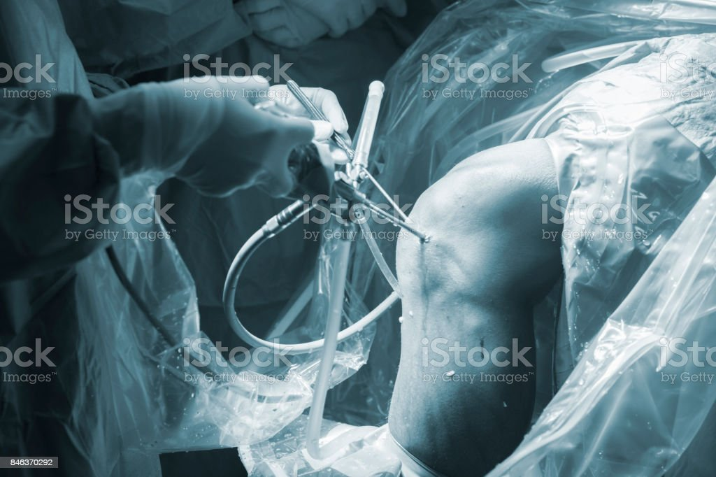Knee keyhole surgery hospital arthroscopy operation medical procedure in emergency room operating theater. stock photo