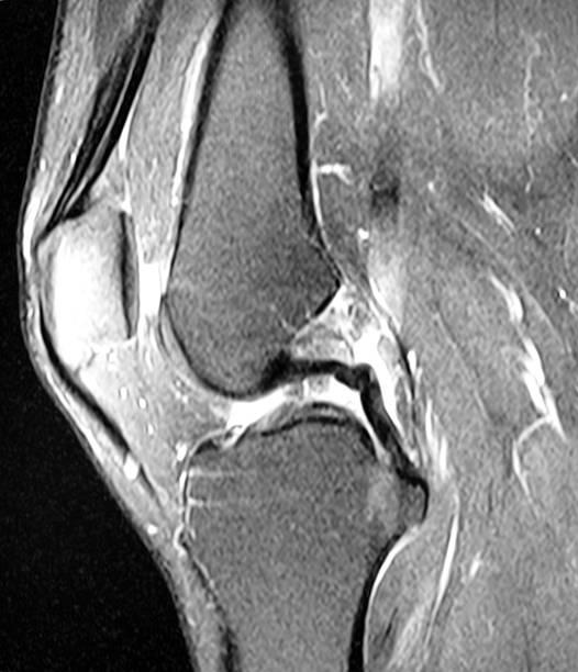 Knie MRI Bild – Foto