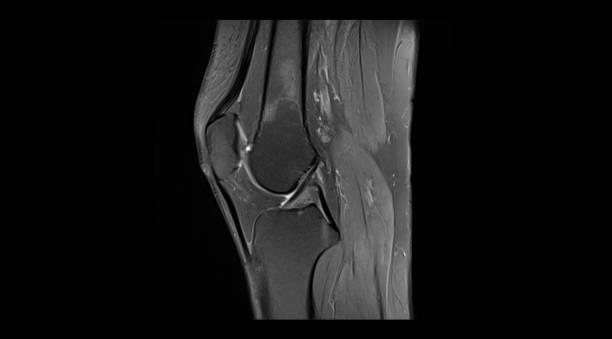 knee mri (magnetic resonance imaging) - menisco foto e immagini stock