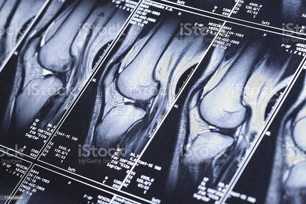 Knee MRI showing damage of the cross-shaped ligaments stock photo