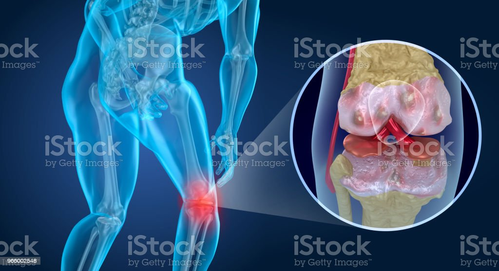Knee pain Attack, man suffering from knee. 3D illustration - Foto stock royalty-free di Anatomia umana