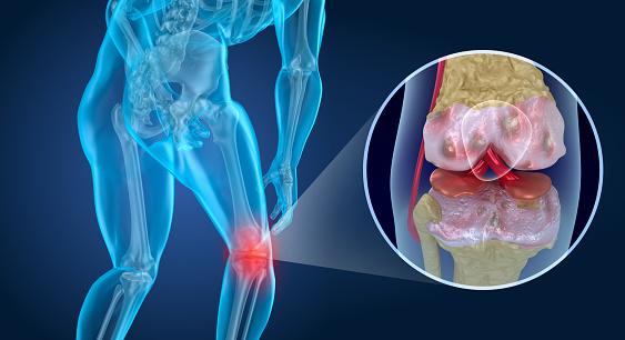 Knee Pain Attack Man Suffering From Knee 3d Illustration - Fotografie stock e altre immagini di Anatomia umana