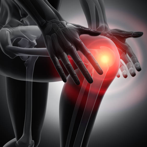 Dolor de rodilla - arte conceptual - 3d Ilustración - foto de stock