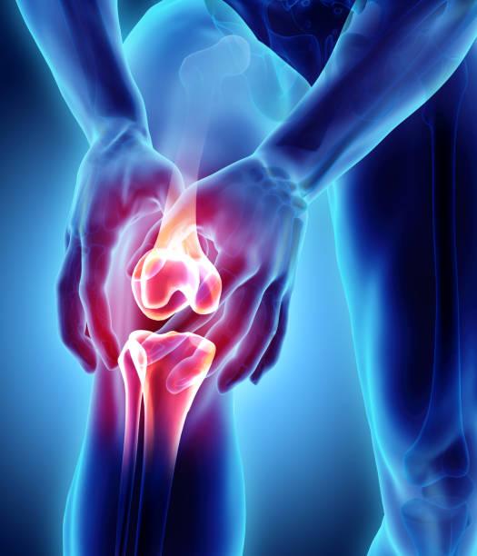 Knee painful - skeleton x-ray. stock photo