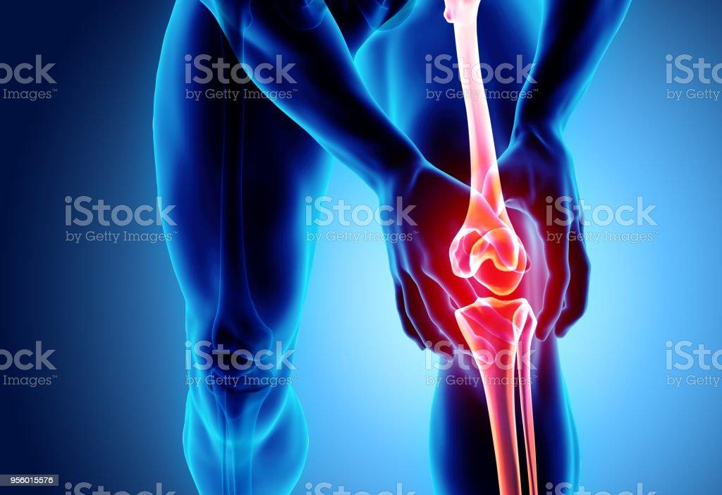 Knee painful - skeleton x-ray. royalty-free stock photo