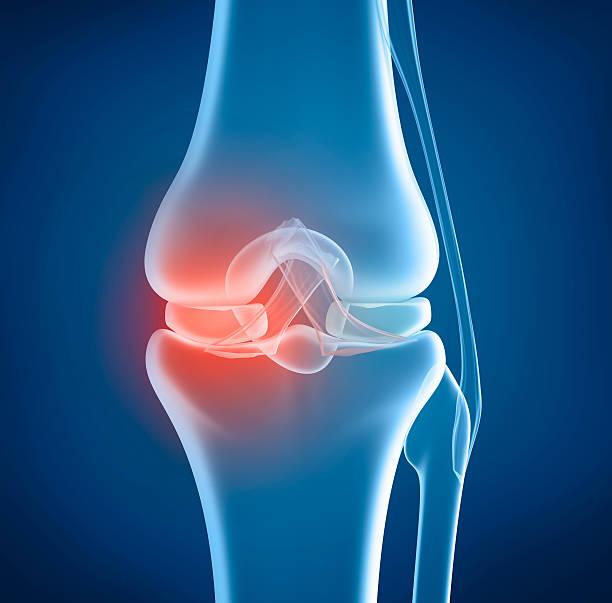 ginocchio problema, x-ray vista - menisco foto e immagini stock