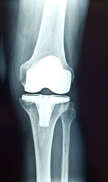 Knee prosthesis x-ray stock photo