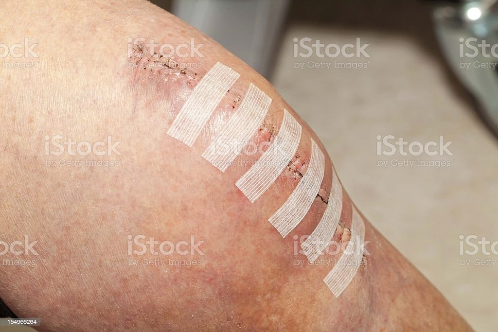 Knee replacement incision royalty-free stock photo
