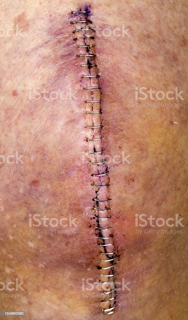 Knee replacement incision series stock photo