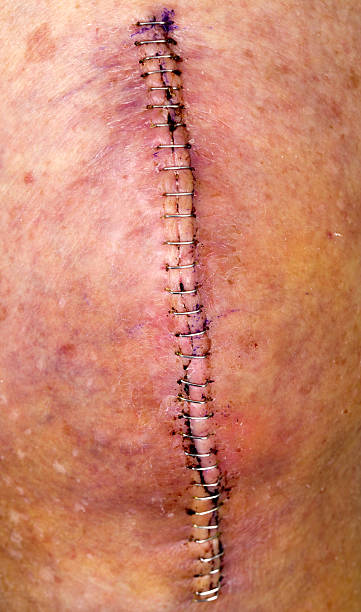 knee replacement incision series - seam stock photos and pictures