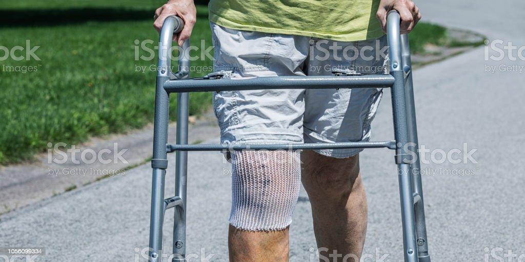 Knie Ersatz Chirurgie medizinische Patienten Nahaufnahme – Foto