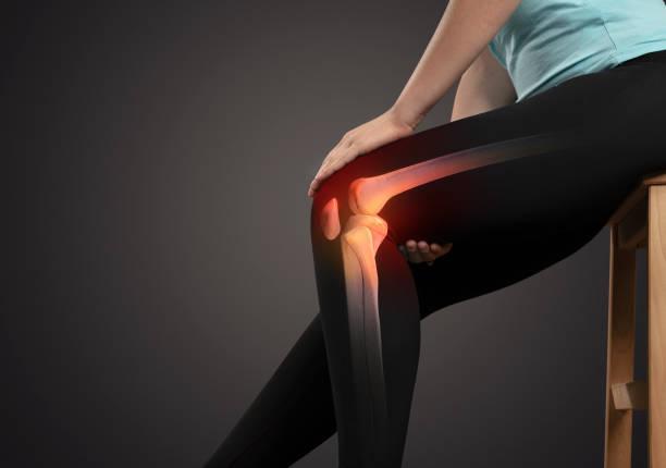 knä trauma och ledvärk - knäskål bildbanksfoton och bilder