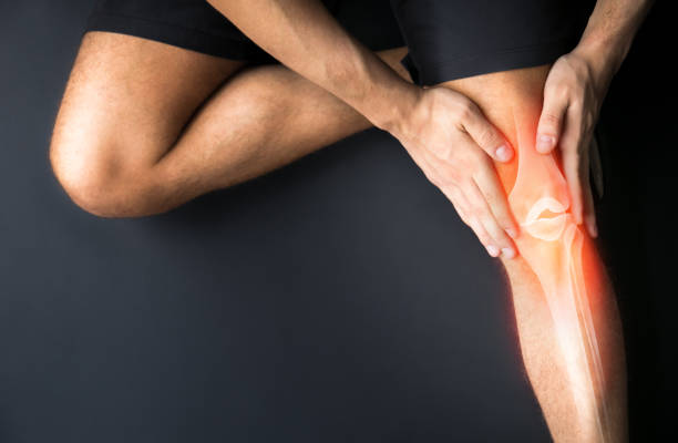 knee trauma and joint pain-sports injuries - dolore fisico foto e immagini stock