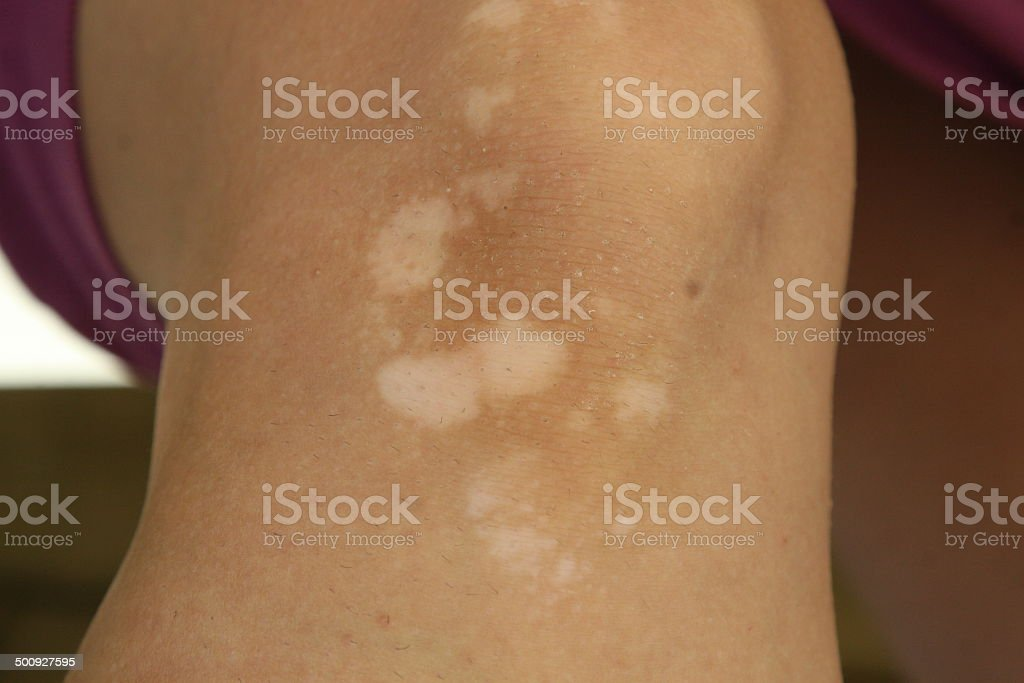 Knee with vitiligo skin condition stock photo