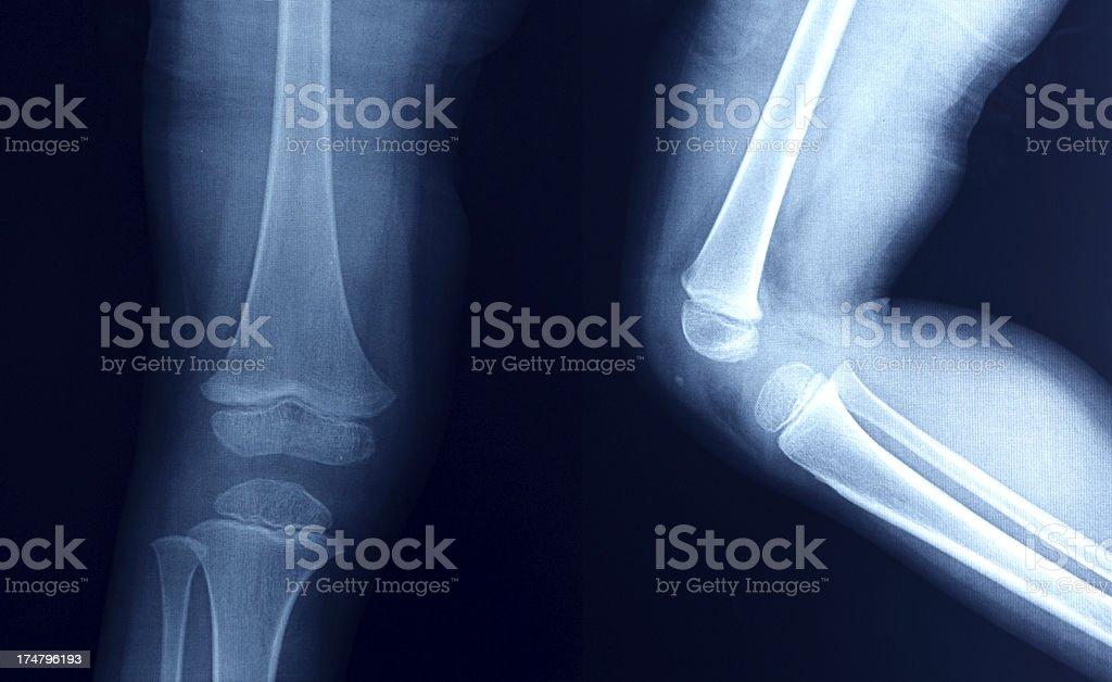 La Radiografía De La Rodilla De Los Huesos Pierna Humana Anatomía ...