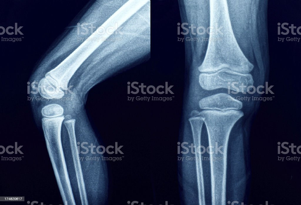 Knee Xray Bones Human Leg Anatomy Stock Photo & More Pictures of ...
