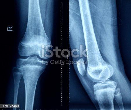 istock Knee X-Ray Bones Human Leg Anatomy 175175460