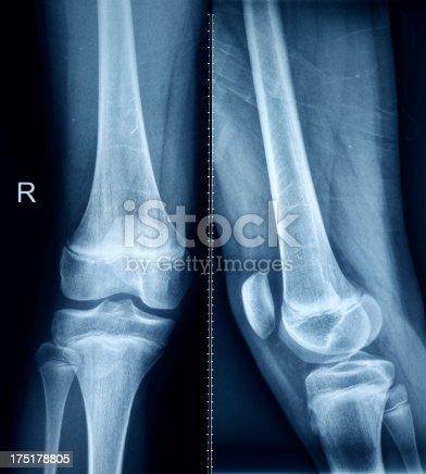 istock Knee X-Ray Bones Human Leg Anatomy 175178805