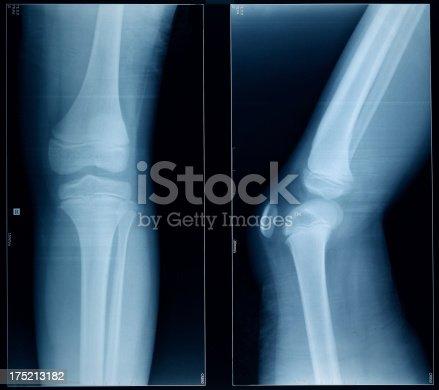 istock Knee X-Ray Bones Human Leg Anatomy 175213182