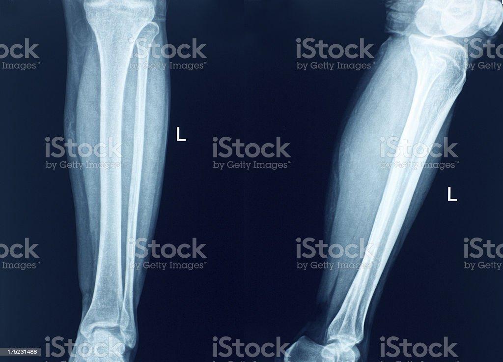 Knee Xray Bones Human Leg Anatomy Stock Photo & More Pictures of ...