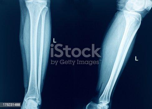 Knee X-Ray Bones Human Leg Anatomy