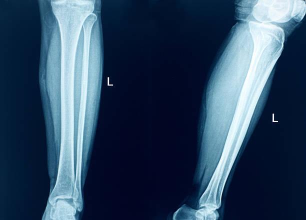 膝の部位の x 線骨人の脚 - 脛 ストックフォトと画像