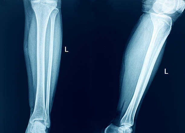 genou humain anatomie x-ray os de la jambe - mi jambe photos et images de collection