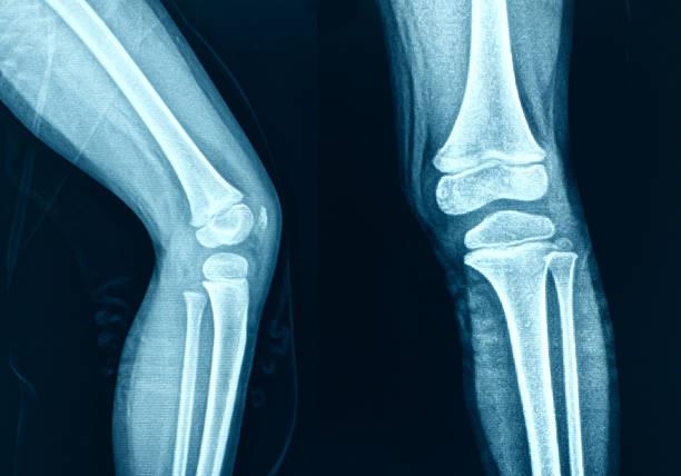 knee x-ray bones human leg anatomy - knäskål bildbanksfoton och bilder