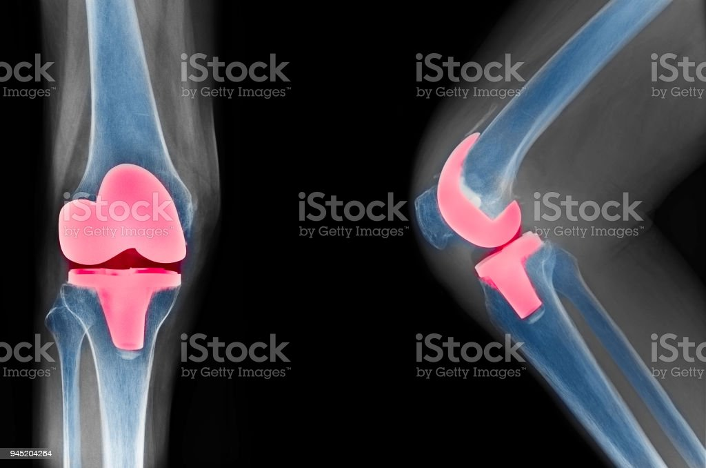 knee x-ray show total knee replacement stock photo
