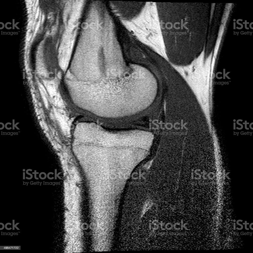 Knee-joint stock photo