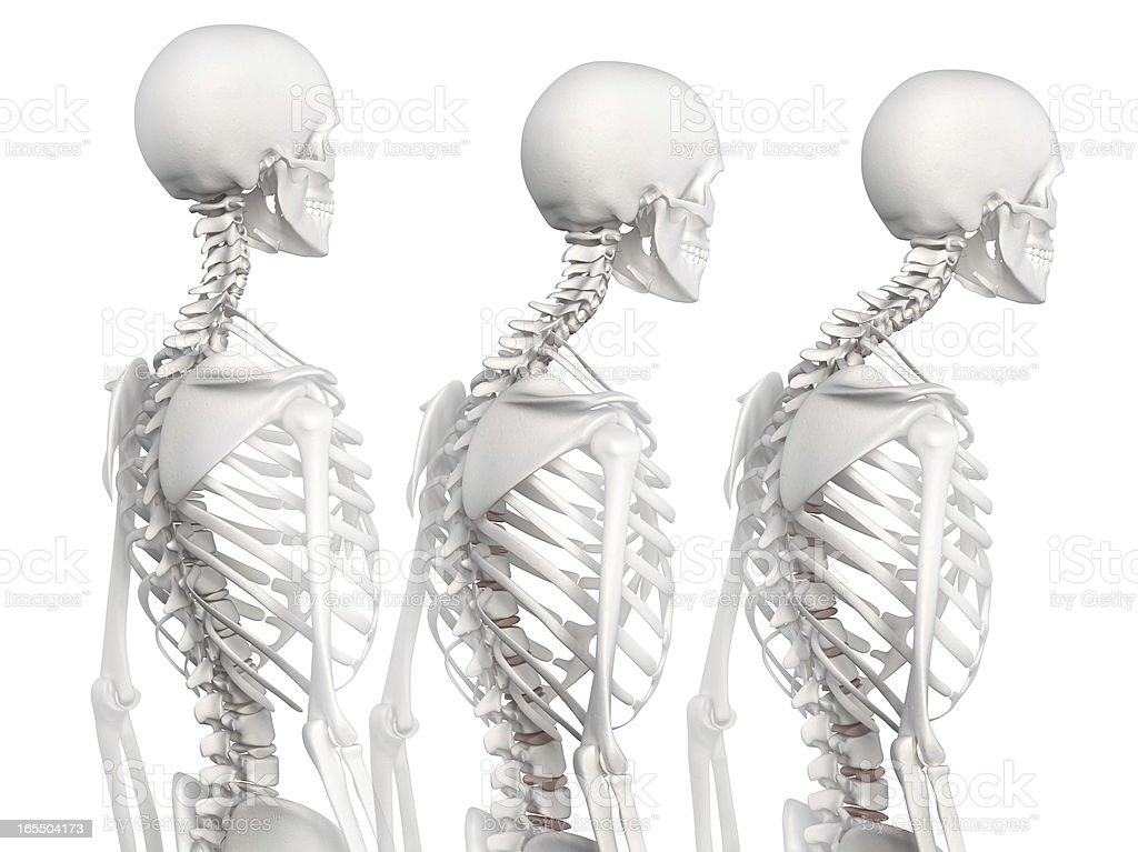 Kyphotic spine in 3 phases stock photo