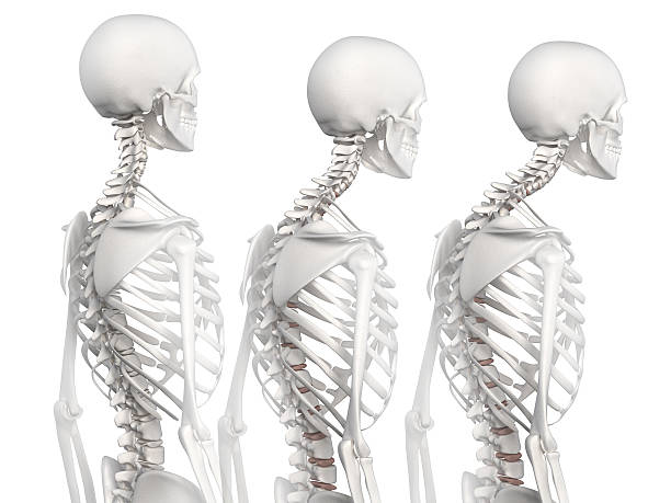 kyphotic spine in 3 phases - janulla stock pictures, royalty-free photos & images
