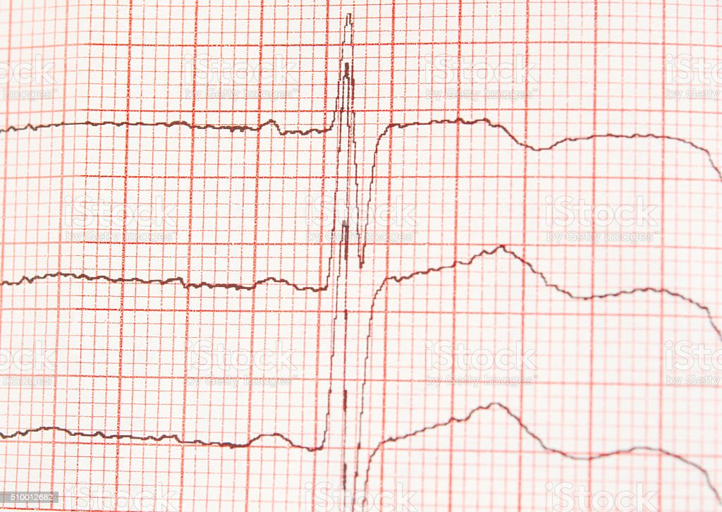 l ECG graph stock photo