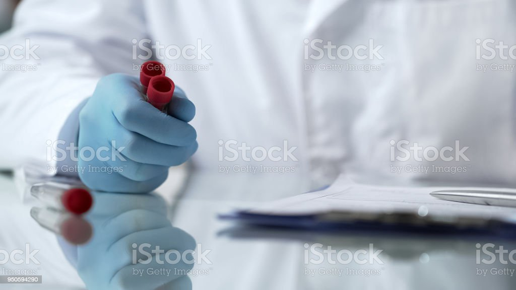 Lab assistant analyzing test tubes with viruses for filling database report stock photo