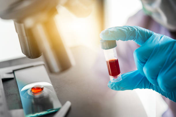 lab technician assistant analyzing a blood sample in test tube at laboratory with microscope. medical, pharmaceutical and scientific research and development concept. - ricerca scientifica foto e immagini stock