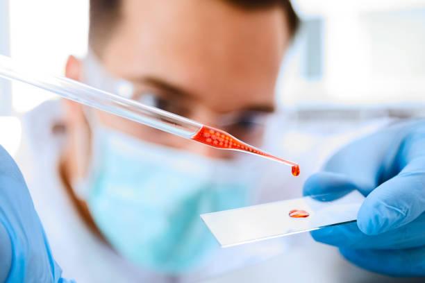 Labortechniker bereitet Blutprobe für Mikroskop vor – Foto