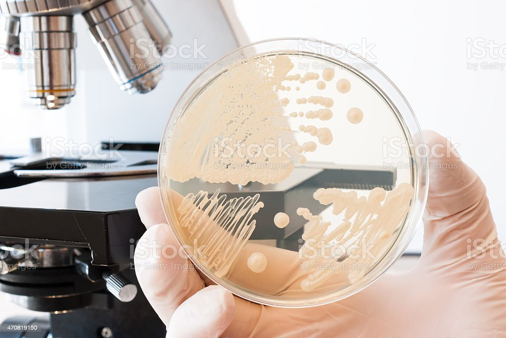 Laboratory doctor hand with gloves holding petri dish with bacteria stock photo