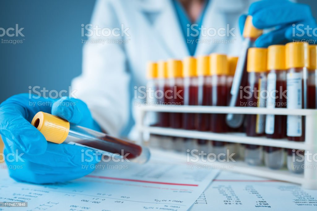 Laboratory result with blood tubes Blood Test, Blood, Medical Sample, Test Tube Analyzing Stock Photo