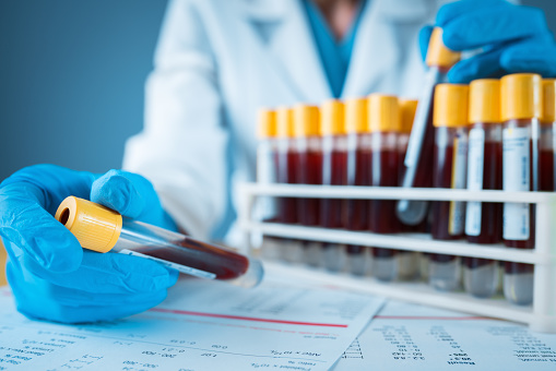 Laboratory Result With Blood Tubes Stock Photo - Download Image Now