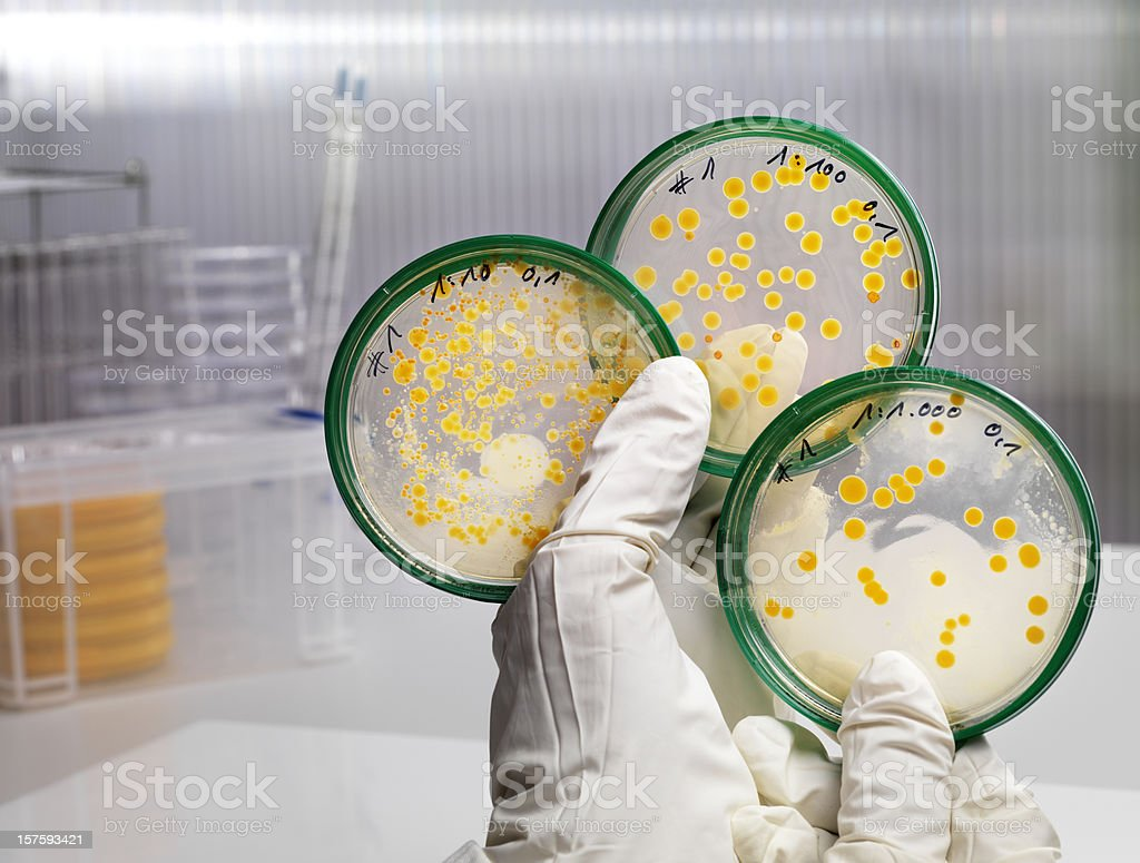 Laboratory series with three different concentrated bacteria cultures royalty-free stock photo
